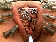 Needles in labia